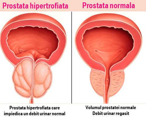 tratament pentru erecție slabă cu prostatită