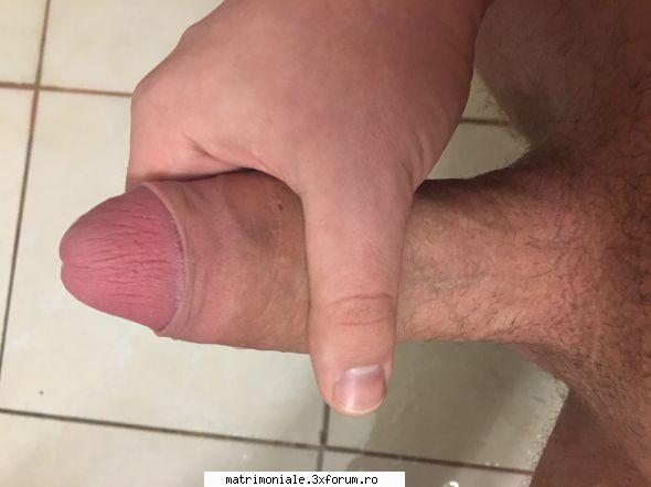 erecție afectată din cauza prostatitei ce dimensiune penis ți se potrivește