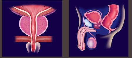 erecție cu paraproctită