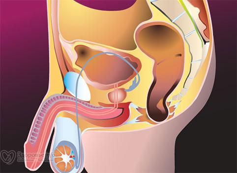 Boala care afectează penisul și de care suferă până la 3% dintre bărbați