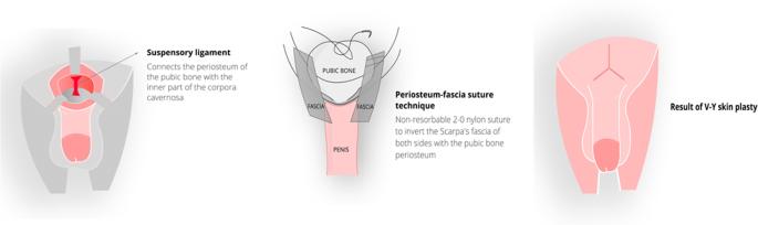 nodul în penis ce este lungimea penisului în stare de excitare