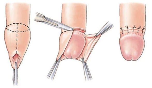 tehnica de compresie a penisului