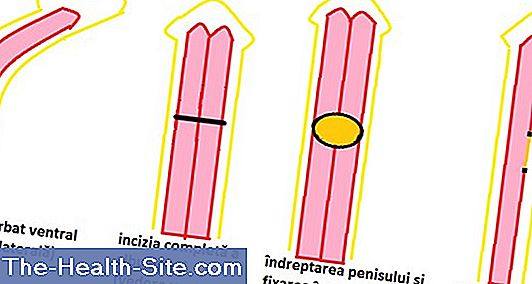 cum se mărește formarea penisului