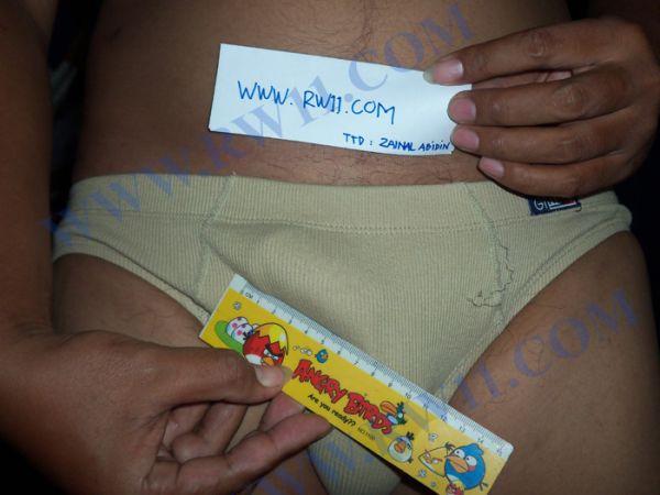 penisul mărește diametrul care sunt simptomele bolii penisului