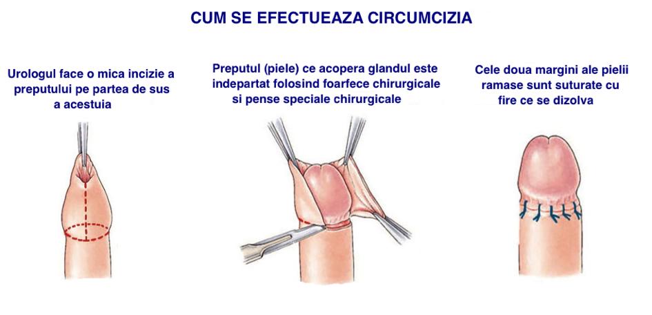 formare dură în penis ce se întâmplă când o erecție