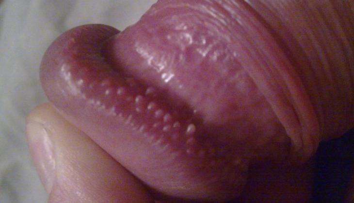 Bubite pe penis