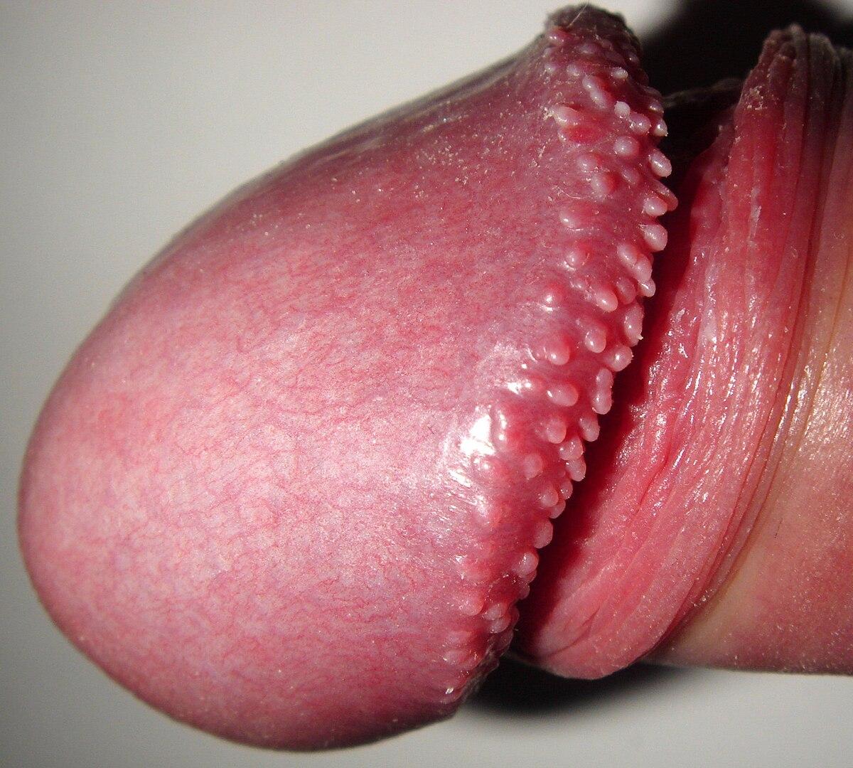Pupulele perlate pe capul penisului: cauze și tratament