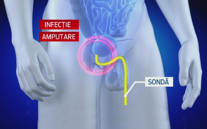 amputarea penisului tratamentul lipsei de erecție la bărbați