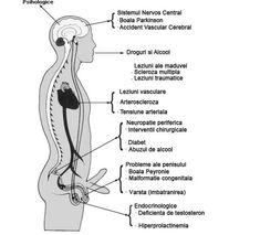 metode de tratament pentru erecția slabă