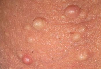 papule sidefate ale penisului