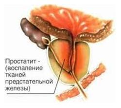 cu prostatită, erecția s- a înrăutățit cum să faci o pompă de penis cu propriile mâini