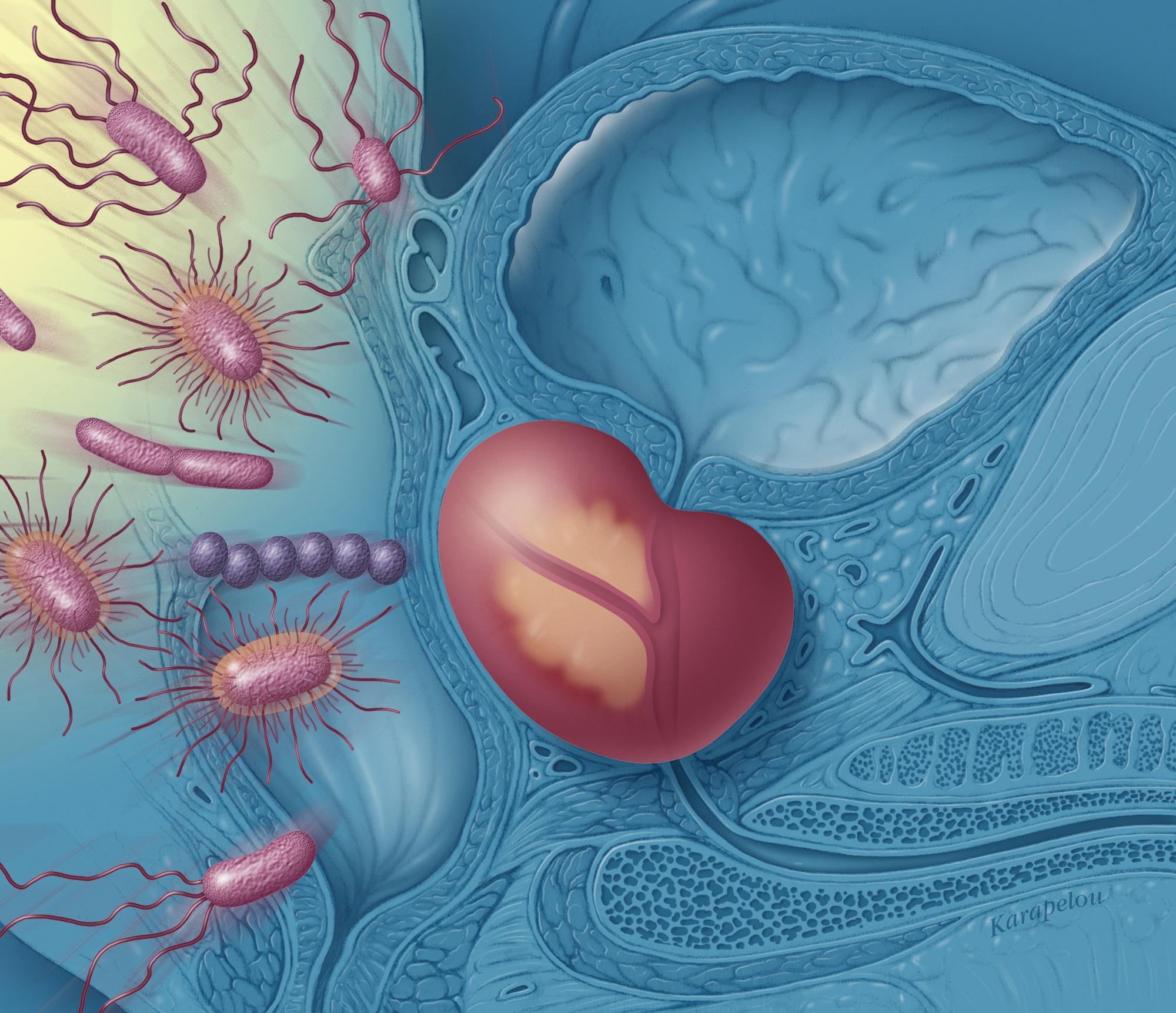 internii erecția pacientului