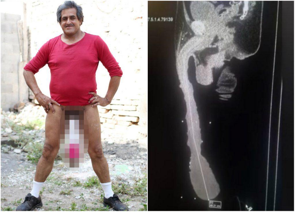 cel mai lung penis din