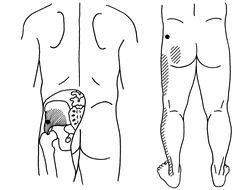 Efectul hemoroizilor asupra potenței și a vieții sexuale a bărbaților