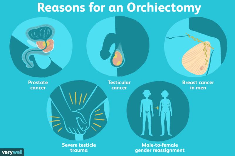 orhiectomie și erecție