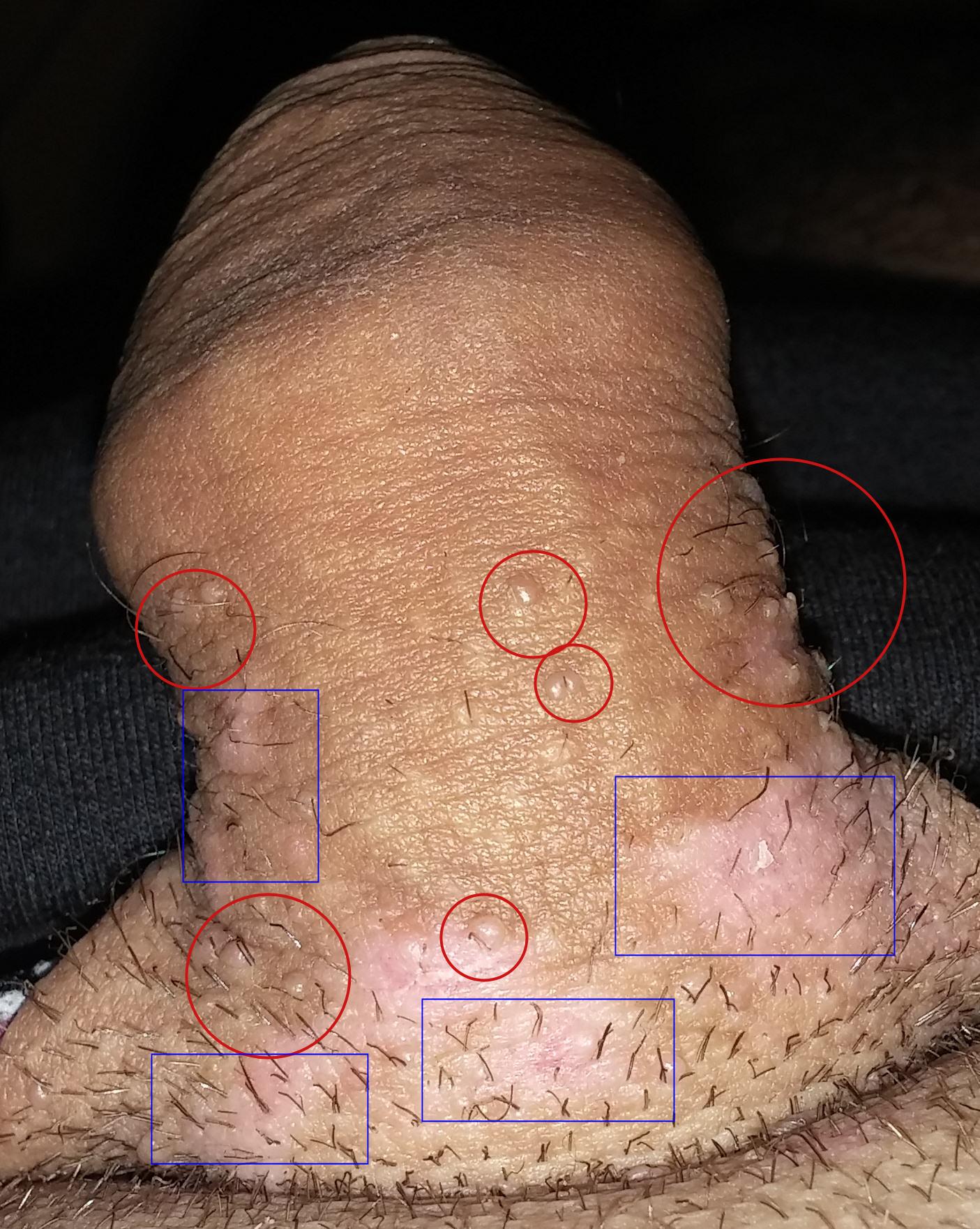 durere penis ce este