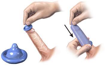 penis în prezervativ