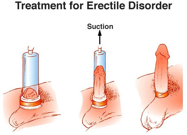 de ce este denumit astfel penisul de ce este penisul moale în timpul actului sexual