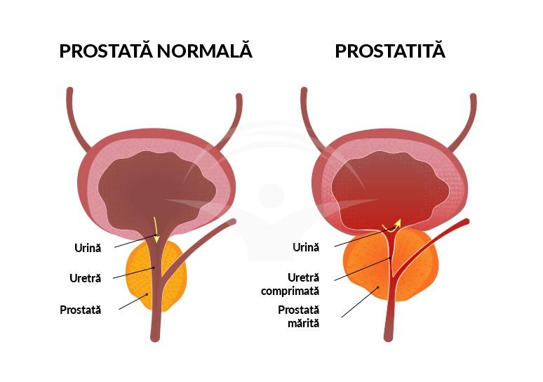 prostatita penisului motivul lipsei unei erecții la un bărbat