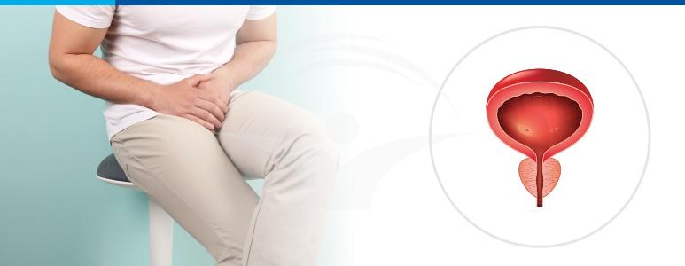 prostatita penisului instabilitate de erecție
