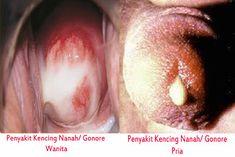 Sifilis: cause, simptome si tratament!