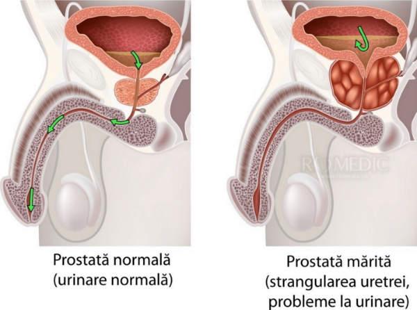 prostatită cronică erecție slabă