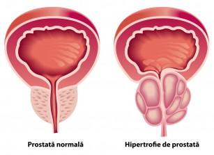 tratament de erecție după prostatită