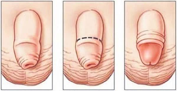penis lipit penis din latină