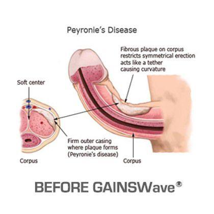 testosteron pentru creșterea penisului