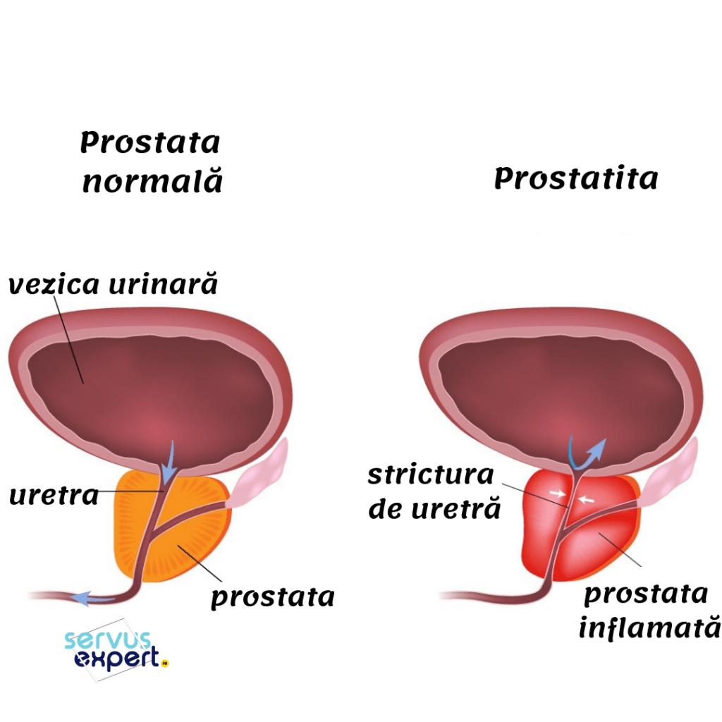 Sfatul Farmacistului: Prostatita cronica recidivanta