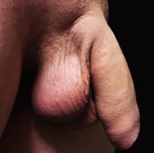penis ascuns în erecție