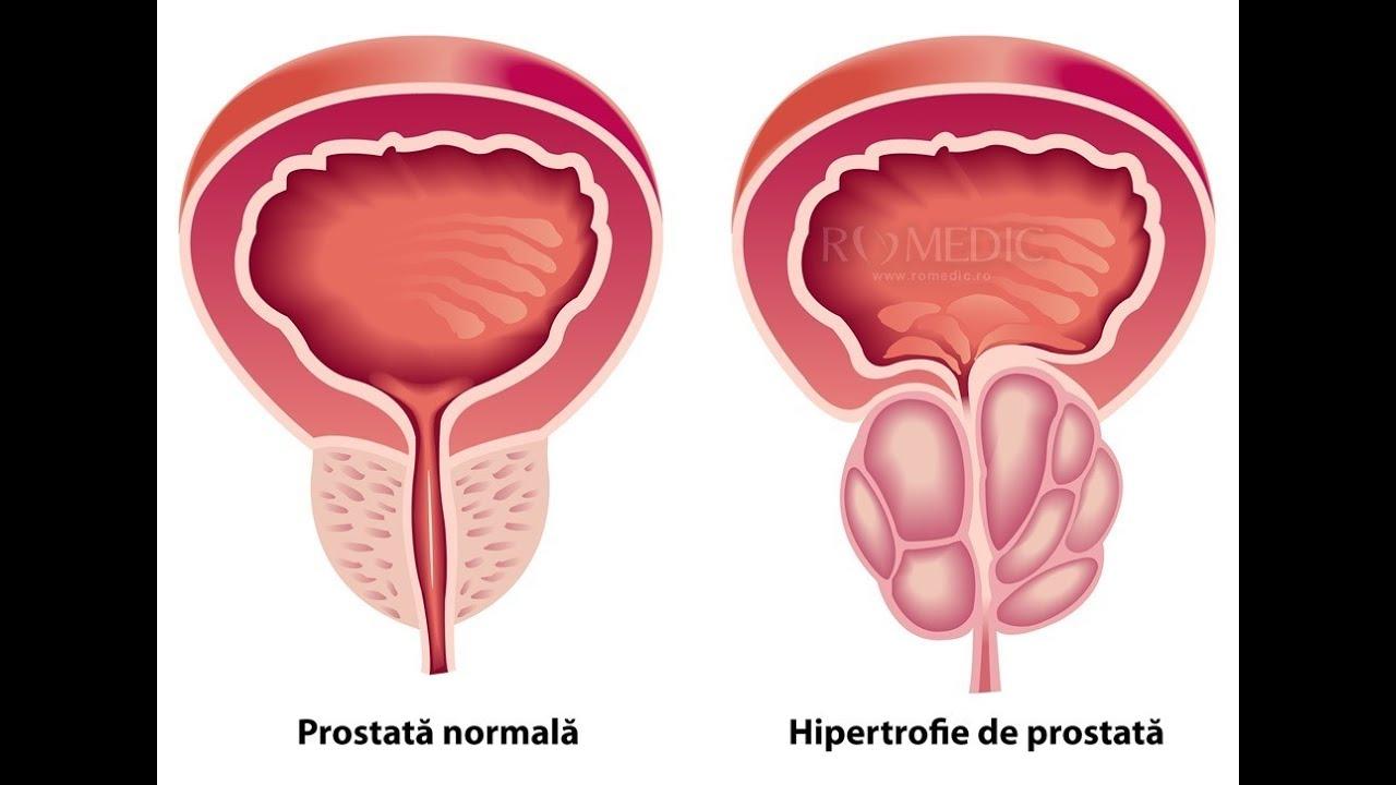 masajul prostatei afectează erecția