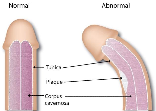 Deformarea penisului (boala Peyronie)