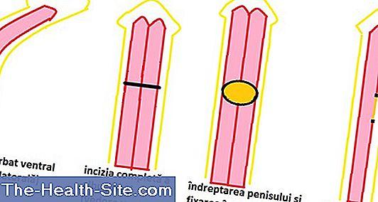 dimensiunea medie a erecției
