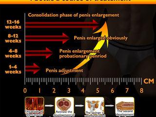 vitamine pentru erecție durabilă inele penisului masculin