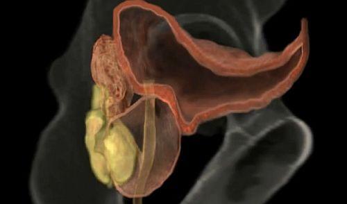 disfuncție erectilă prostatită