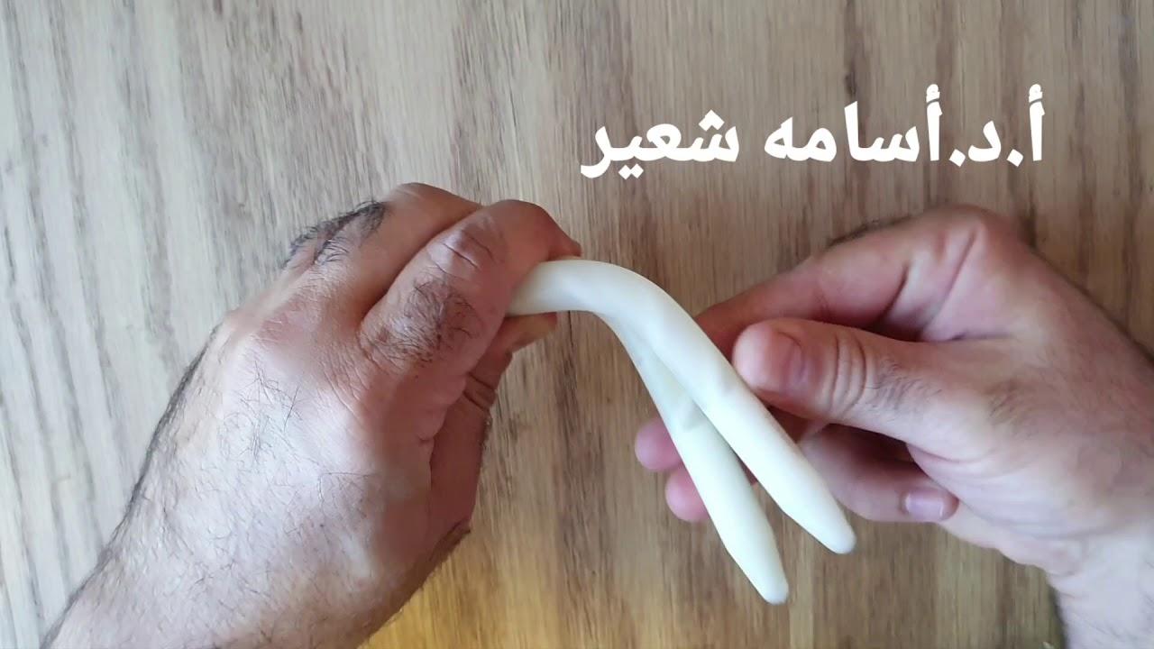 papule pe penis