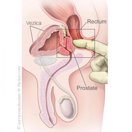 Prostata erectie Pagina 2